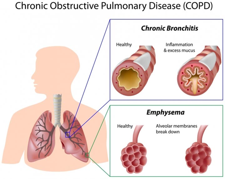 COPD, Cure for COPD, combat COPD, What is COPD
