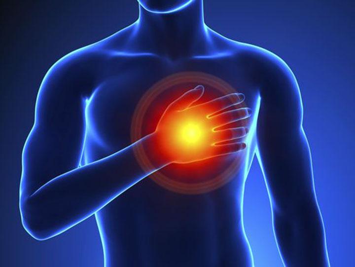 afib and stroke, stroke, afib symptoms