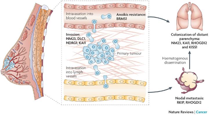 breast cancer statistics, metastatic breast cancer, metastatic breast cancer symptoms