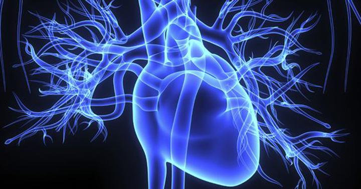 preventing strokes, warfarin, blood thinners, atrial fibrillation
