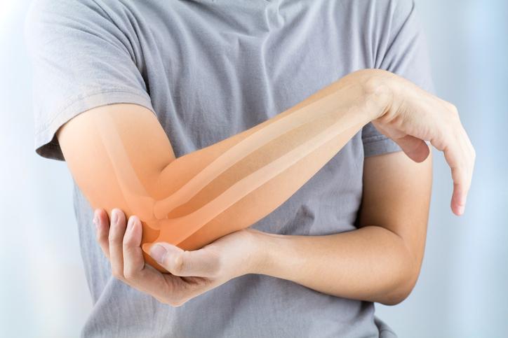 osteoporosis symptoms, osteoporosis