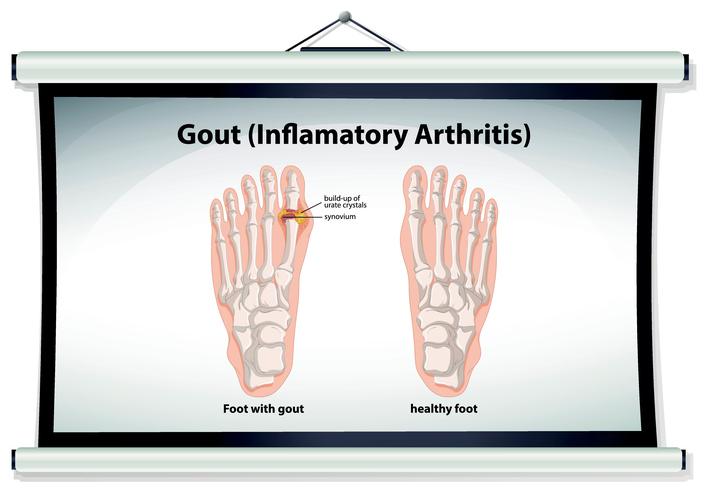 gout, gout symptoms